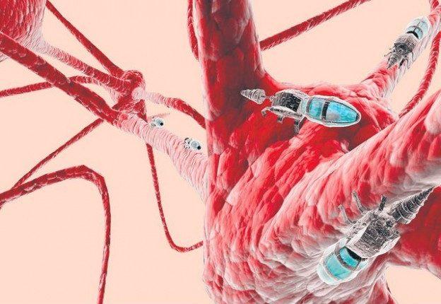 nano robots-brain cell