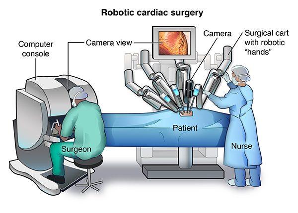 surgery-robot-davinci