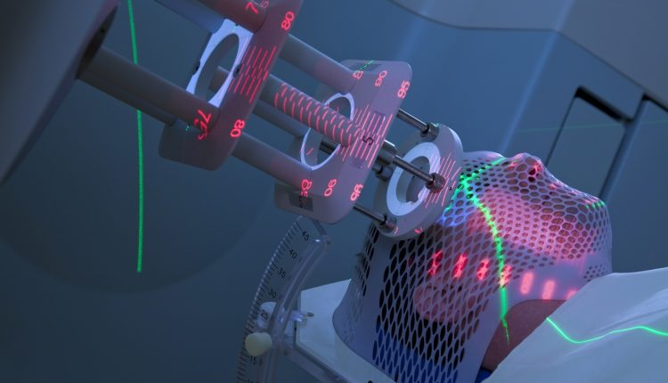 Man Receiving Radiotherapy for Cancer Treatment